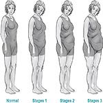 Ожирением в Беларуси страдают более 25% населения